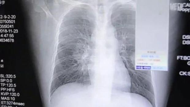 tenia en los pulmones